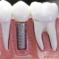 Zubné implantáty rozžiaria úsmev