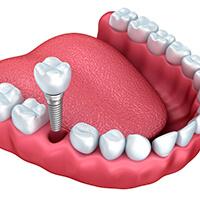 Zubní implantáty zadních zubů